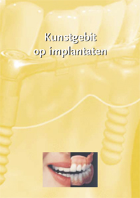 folder_thumb_implantaten
